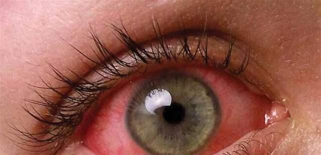 إحذروا أمراض العين في الصيف!