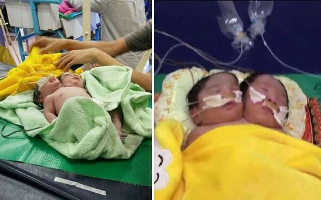 لأوّل مرة في العالم: متحوّل جنسياً يرضع طفله